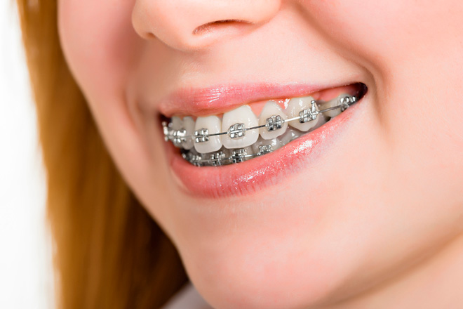 Какие брекеты лучше ставить на зубы