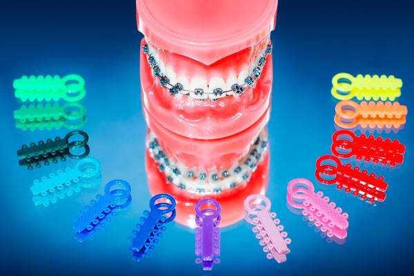разноцветные резинки для лигатур