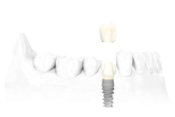 имплантация зубов с помощью Нобель