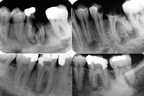 Болит надкостница после удаления зуба