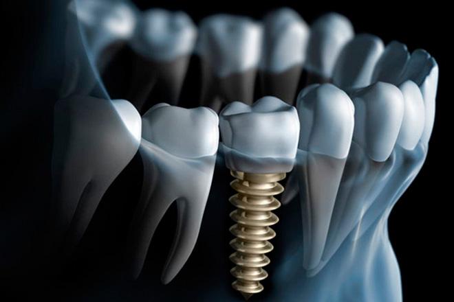 Имплантация зубов в Москве — цены за 1 зуб. Стоимость имплантации зубов под ключ с установкой
